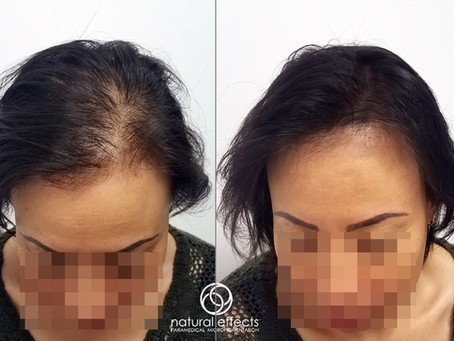 Hair Density Treatments vs. Hair Transplants