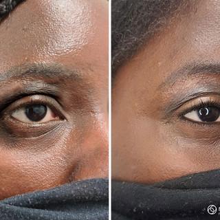 Skin Micropigmentation
