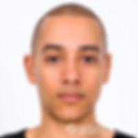 Paramedical micropigmentation medical tattoo scalp hair loss balding treatment