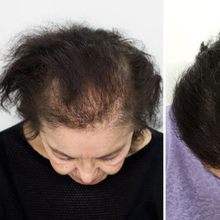 Hair Density Treatment