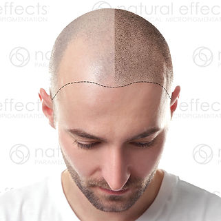 Medical Tattoo Paramedical Scalp Micropigmentation. Offers bald men a better alternative to hai transplant surgery for a fraction of the cost