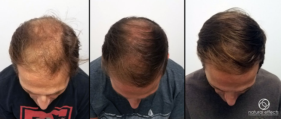 SMP Hair Density scalp micropigmentation
