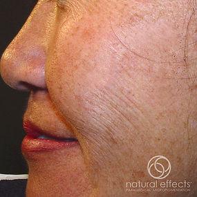 Medical Tattoo Skin Micropigmentation Results