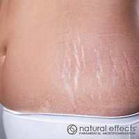 pregnancy stretch marks treatment color reduction and camouflage with medical tattoo micropigmentation