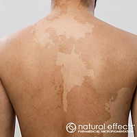 Vitiligo treatment pigment color reduction and camouflage with medical tattoo micropigmentation