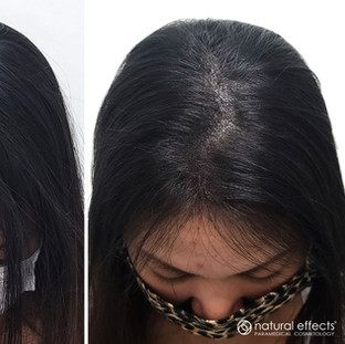Hair Density Treatment