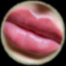 hyaluron pen fillers botox lip filler wrinkle removal plump lips cheeks smile lines reduction