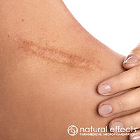cosmetic makeup surgical scar reduction and camouflage with medical tattoo micropigmentation