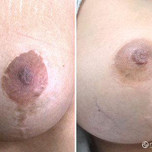 Areola Repigmentation and Camouflage