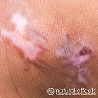 Paramedica micropigmentation medical tattoo