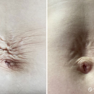 Plasma Skin Tightening