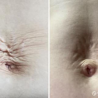 Plasma Skin Tightening