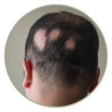 scalp micropigmentation smp hair tattoo medical hairloss treatment alopecia scar balding