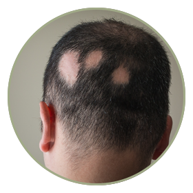 Alopecia & Trichotillomania treatment