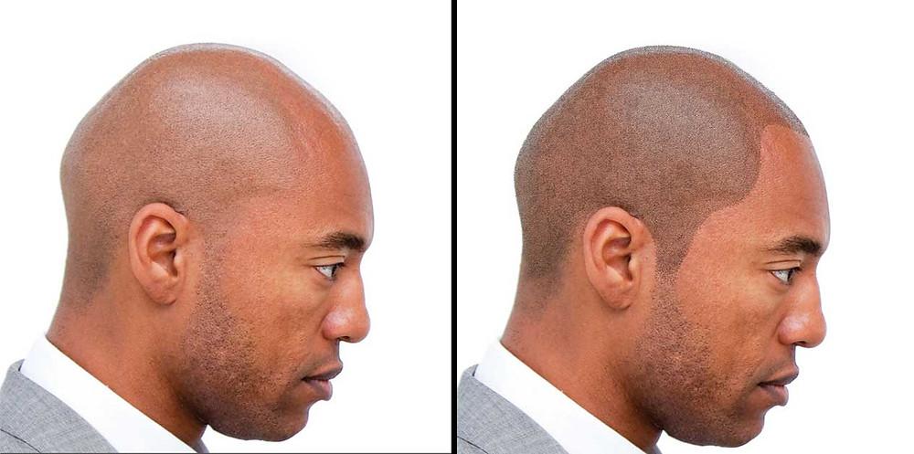 Stop balding with a scalp micropigmentation procedure.