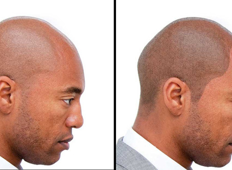 SMP is the most important hair loss solution of the last decade.