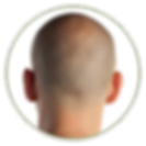 scalp micropigmentation smp hair scalp tattoo medical hair loss treatment