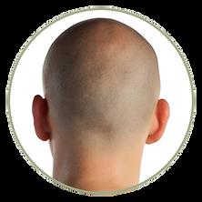 scalp micropigmentation smp hair scalp tattoo medical hair loss treatment