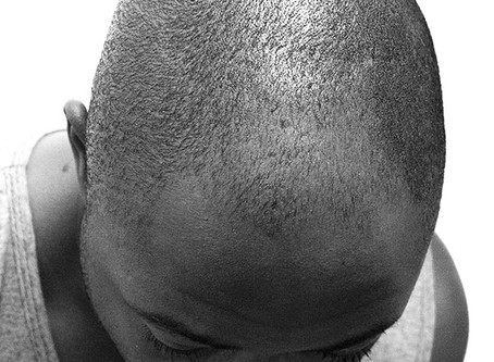 An In-Depth Look at the Scalp Micropigmentation Process
