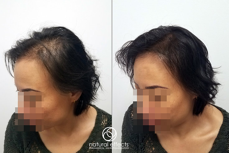 Hair Densit Treatment for Female Hai Loss