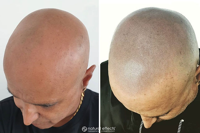 scalp micropigmentation medical hair tattoo for hair loss