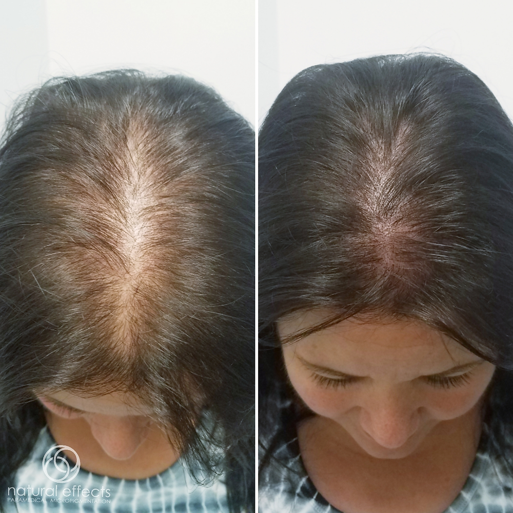 This client underwent HD treatment and this is only the first treatment!