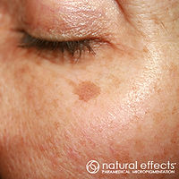 age spots blemish treatment pigment color reduction and camouflage with medical tattoo micropigmentation