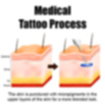 Medical Tattoo Skin Micropigmentation Results