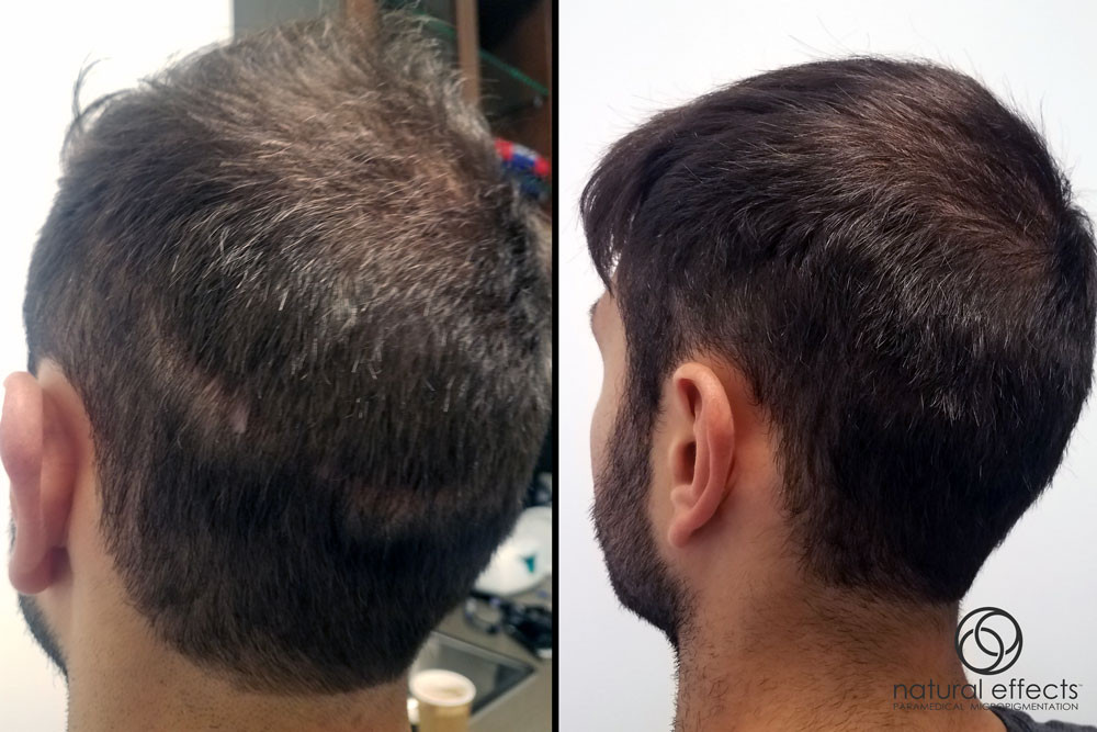 Hair transplant scar (left) covered with hair density treatment (right).