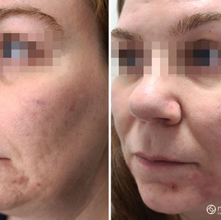 Acne Scar Reduction