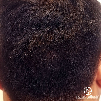 Hair Density Treatment for Hair Loss