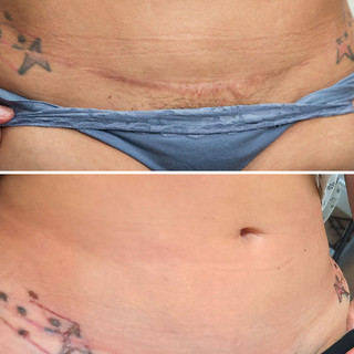Tummy Tuck Scar Reduction and Camouflage