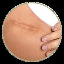 skin micropigmentaion blemish age spots pigment defects vitiligo melasma scar correction camouflage