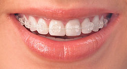 Teeth-Radiance.jpg
