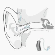 entendre-aides-auditives-micro-contour-m