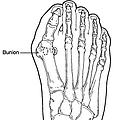 dr pfisterer ankle