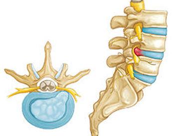 dr pfisterer back pain