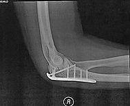 dr pfisterer orthopedic