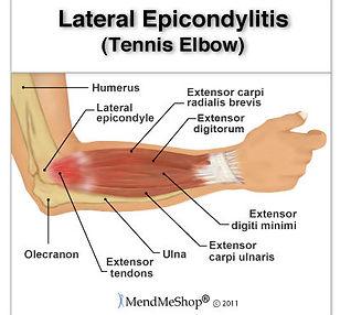 dr pfisterer elbow