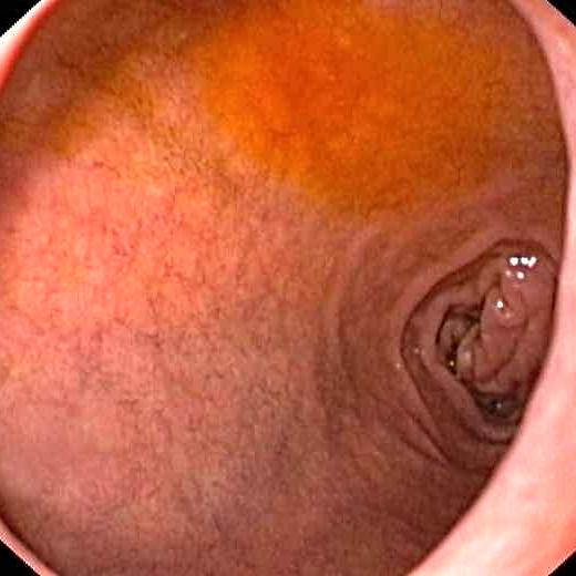 Bulbe duodenal normal