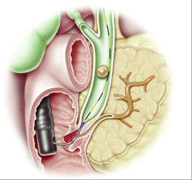 CPRE sphincterotomie lithiase calcul biliaire catheterisme