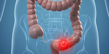 Cancer colorectal colon rectum adenocarcinome colique