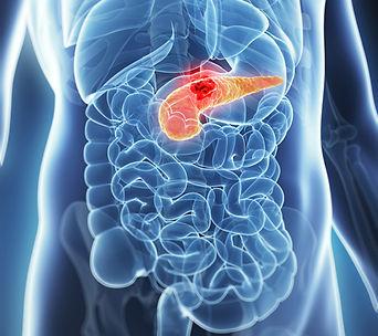Cancer pancreas adenocarcinome