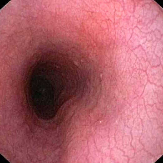 Oesophage normal