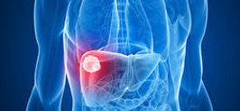 Cancer foie CHC carcinome hepatocellulaire