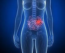 Cancer intestin grele small intestine