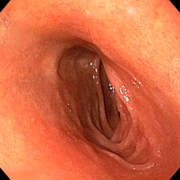 Duodenum normal