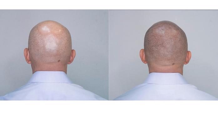Micropigmentacion capilar una solucion a la calvicie, alopecia o camuflaje de cicatrices