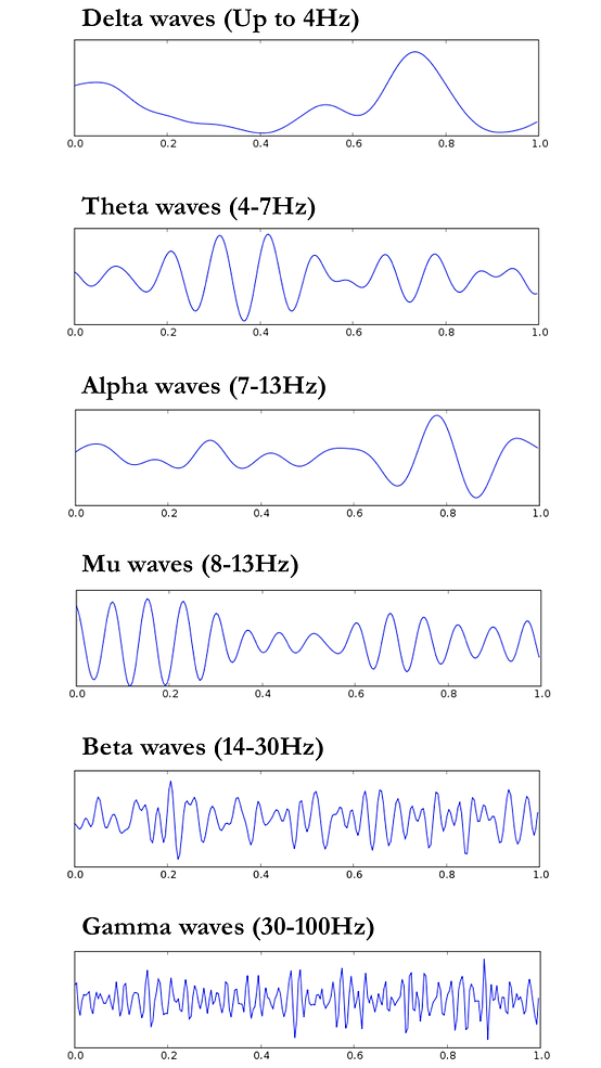 EEG Traces.png