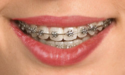 self-ligating-braces.jpg